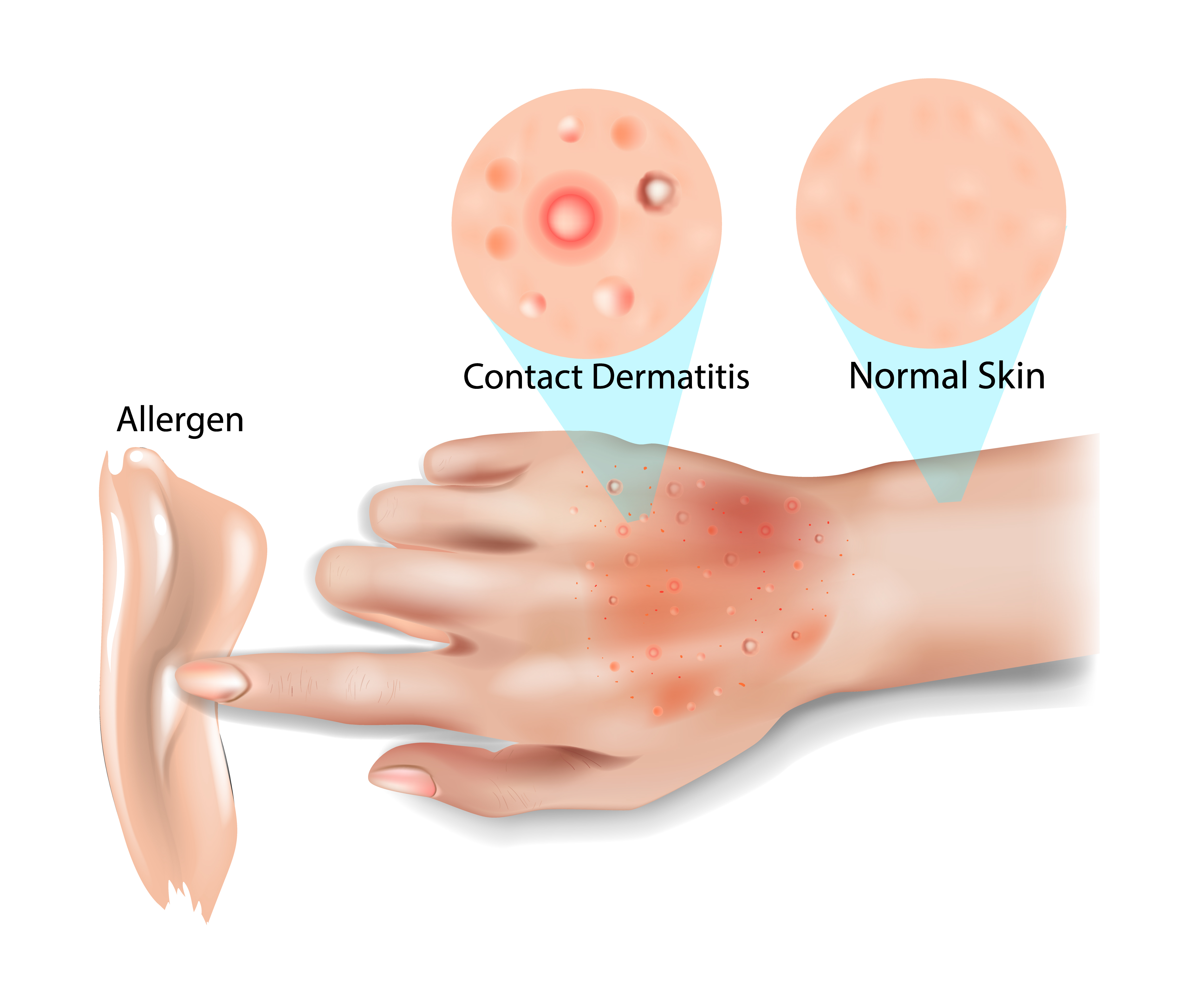 Contact Dermatitis - Advanced Skin and Laser Center